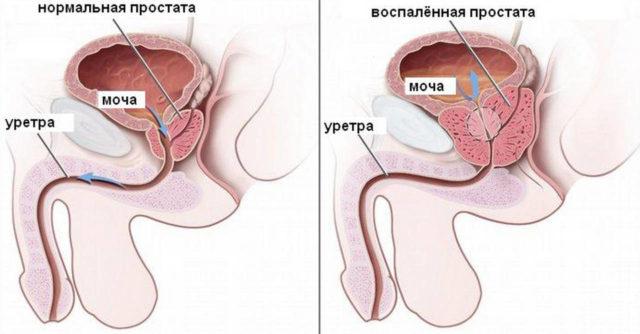 У пациентов, столкнувшихся с ними, простата воспалена полностью, они жалуются на невыносимые боли и высокую температуру тела
