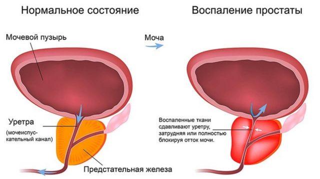 Чтобы не допустить осложнения простатита, необходимо максимум внимания уделить борьбе с ним