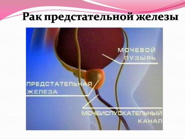 Аденокарцинома простаты по мкб 10