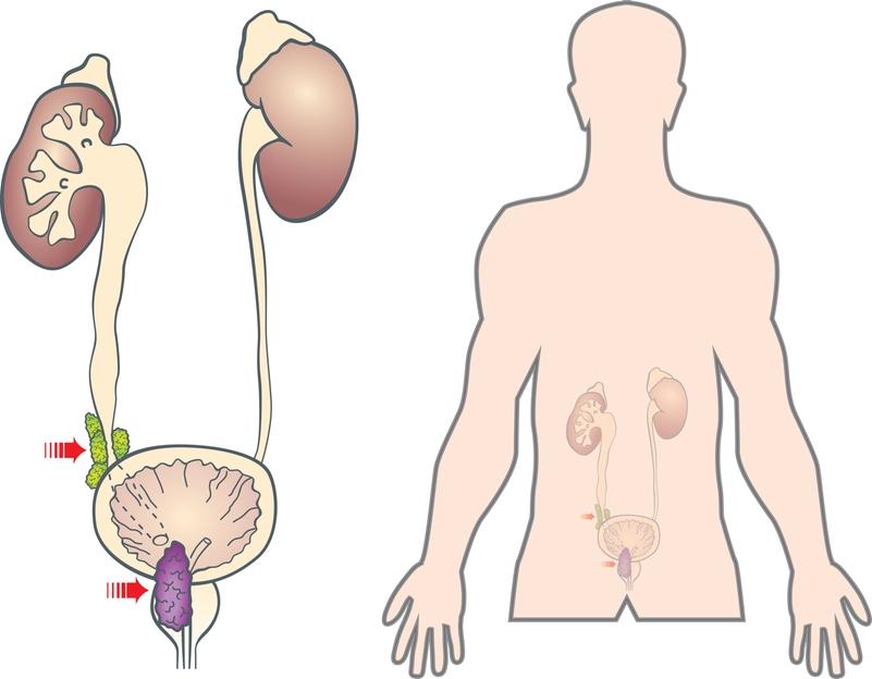 Врачи установили, что метастазы при раке могут встречаться двух видов: остеобластические поражения и остеолитические изменения в костях