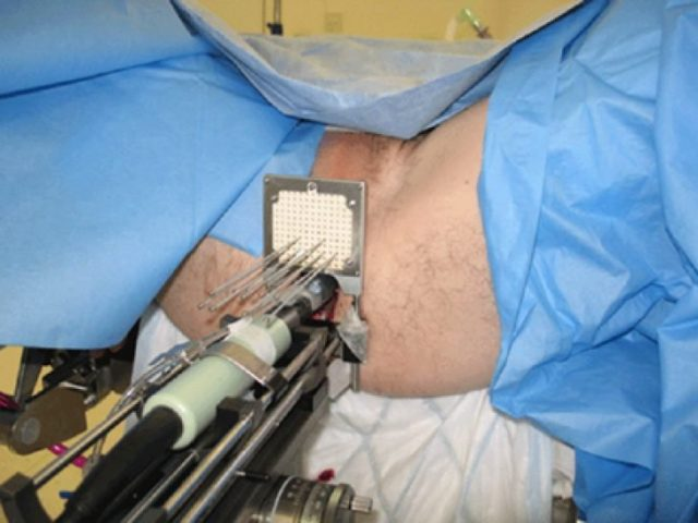 Крайне высокие показатели успешного исхода лечения, даже в запущенных случаях