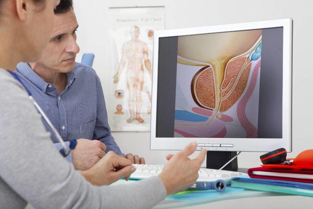 Одновременно специалист применяет скрининговые тесты, позволяющие выявить лиц с факторами риска развития рака предстательной железы с метастазами в кости