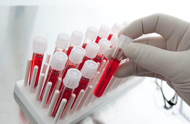 Помимо этого, в обязательном порядке проводят тест на наличие гемоконтактных инфекций (ВИЧ, вирусные гепатиты, реакция Вассермана)