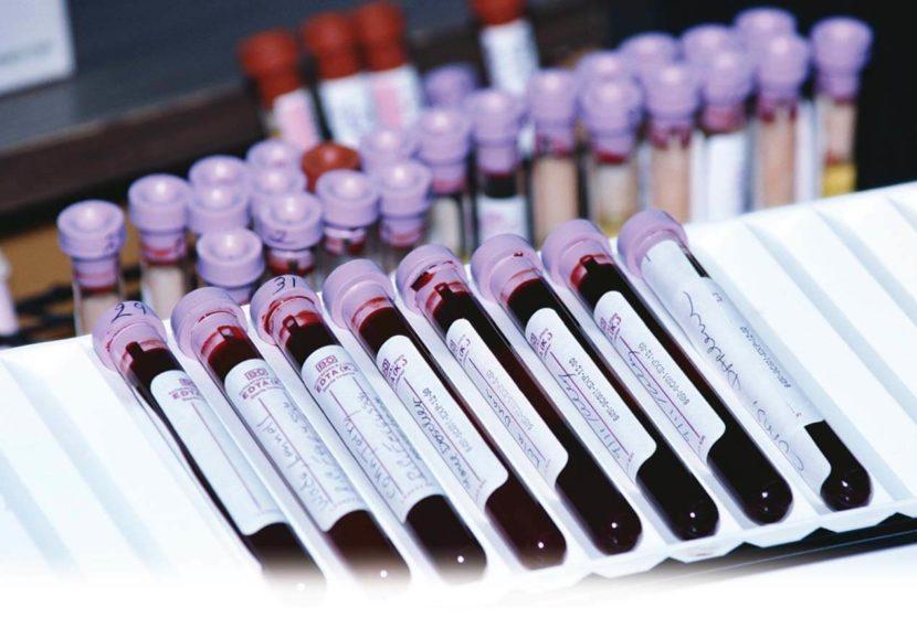 ПСА при аденоме предстательной железы