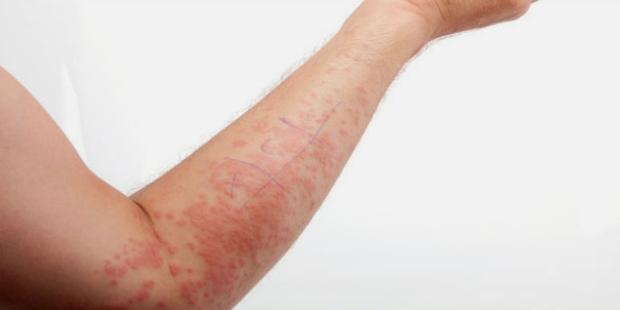 Важно исключить заболевания жизненно важных органов, а также аллергическую настроенность организма