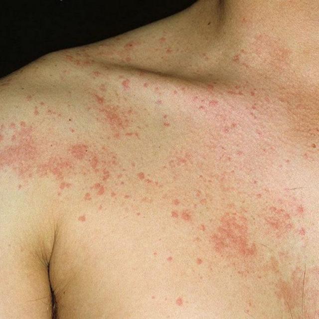 При аллергической реакции на компоненты могут наблюдаться кожные высыпания, в этом случае использование препарата нужно прекратить