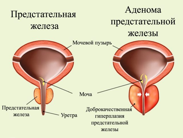 Существует ряд состояний и симптомов, свидетельствующих о том, что аденомэктомия необходима