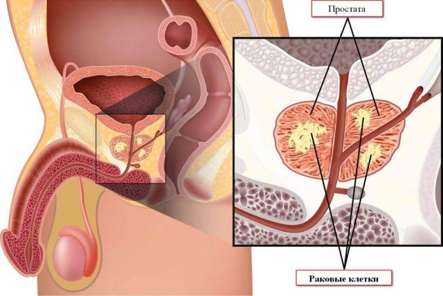 Нельзя проводить операцию при декомпенсации сахарного диабета