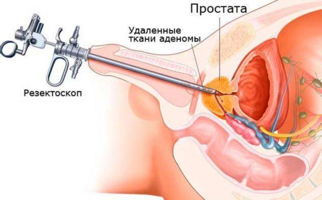 Позадилонная аденомэктомия. Доступ осуществляется также путем рассечения кожи ниже пупка, в данном случае не рассекается стенка мочевого пузыря