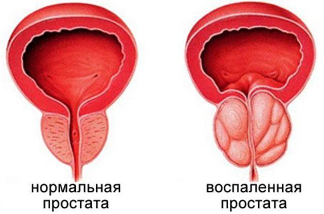 Заболевание характеризуется возникновением в предстательной железе застоя секрета и крови