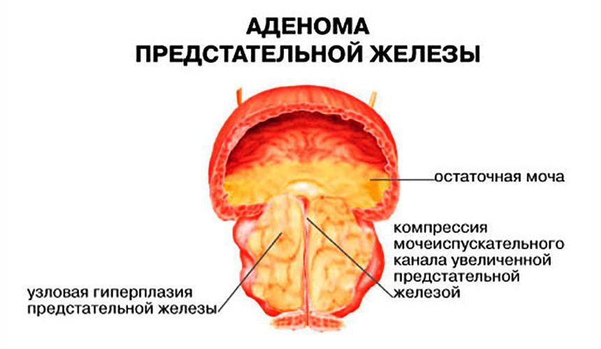 Гиперэхогенные включения в предстательной железе