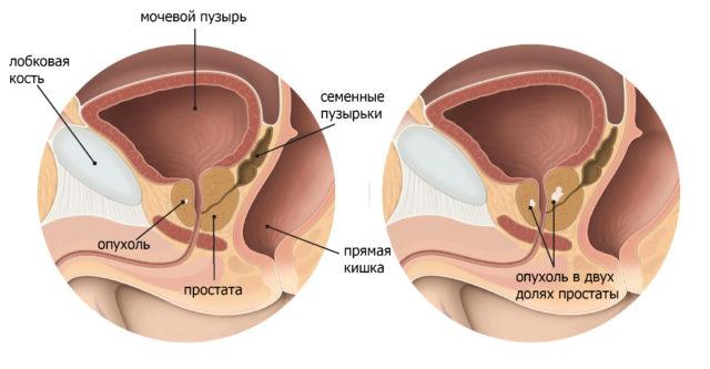 При пальпируемом уплотнении, обусловленном опухолевым очагом, трансректальная биопсия под контролем пальца в опытных руках является щадящим, метким и результативным методом