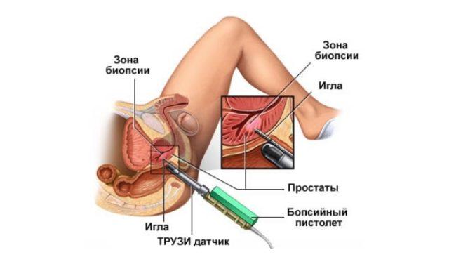 Автоматическое устройство для биопсии предстательной железы вводится в прямую кишку