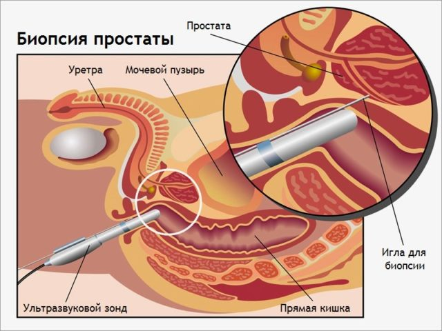 Во время пункции забирают небольшие кусочки ткани, направляемые на гистологическое исследование