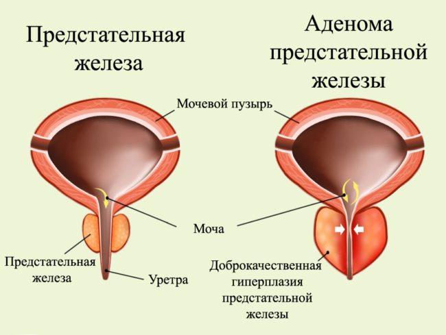 Выделяется три основные стадии этого заболевания
