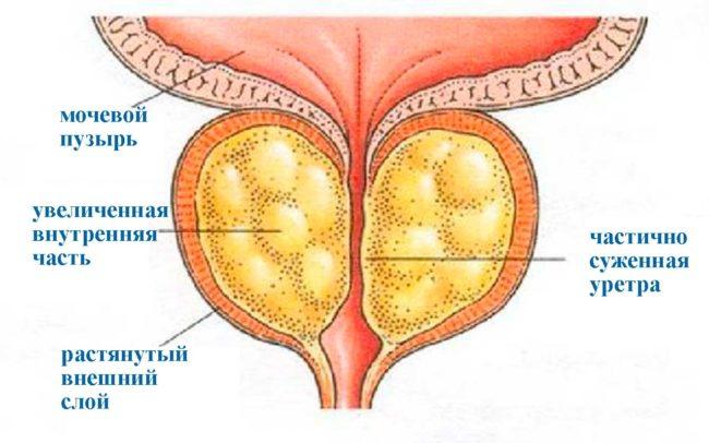 В широком смысле гипертрофия предстательной железы представляет собой разрастание тканей простаты, за счет чего в значительной степени увеличивается ее размер