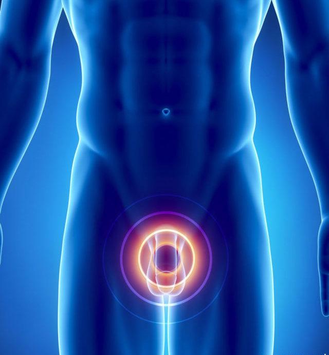 Данная патология опасна возможность перехода в аденому простаты или в карциному