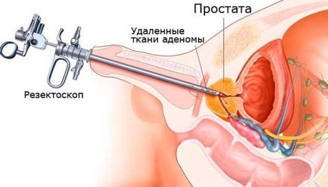 Суть способа заключается в проведении оперативного вмешательства через эндоскоп, вводимый в уретральный канал