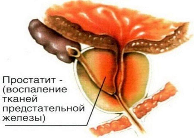 Острый и хронический простатит являются наиболее распространенными и социально значимыми мужскими заболеваниями