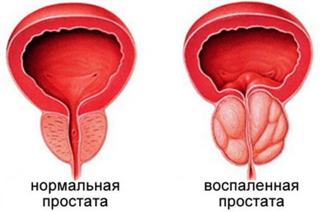 В большинстве случае простатиту предшествует уретрит, а уже на его фоне возникает простатит – острый или хронический