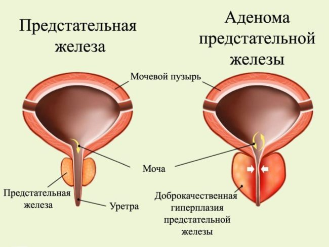При диагностировании заболевания, учитывают объем разрастания ткани, симптоматику и клинические проявления