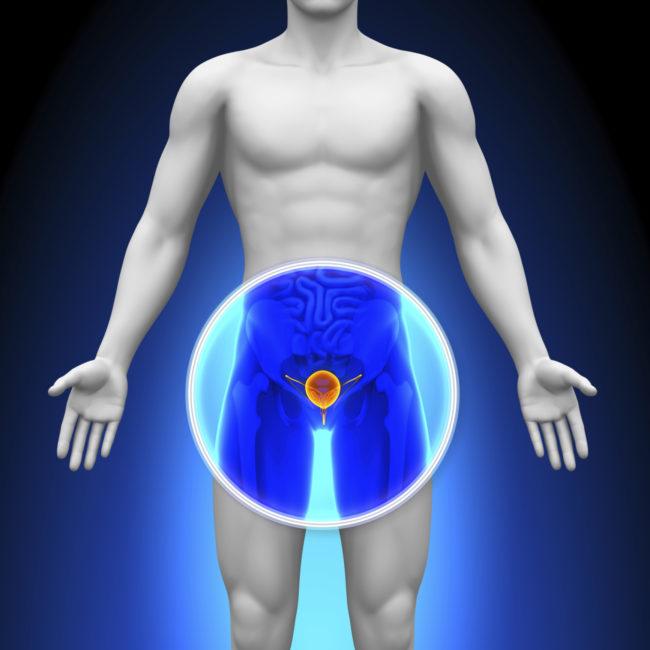 Чаще всего мужчину беспокоит болезненность в паховой зоне, в промежности и в нижней части спины