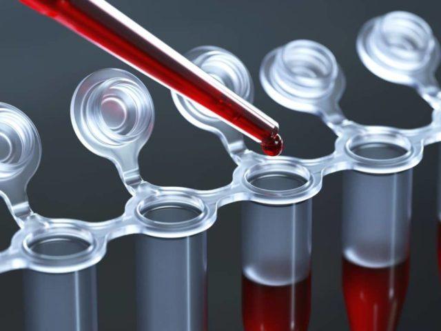 Высокий уровень простатспецифического антигена в крови косвенно указывает на наличие патологического процесса